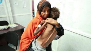 7 Juta Warga Yaman Dipuncak Kelaparan