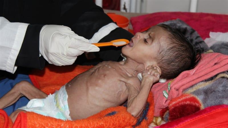 85.000 Anak Balita Mati Kelaparan dalam Perang Yaman