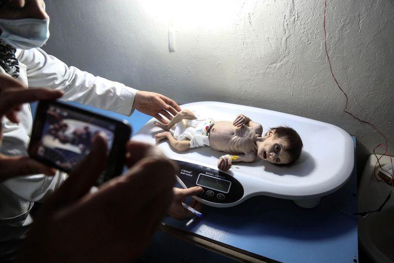 PBB: 400.000 Warga Ghouta Timur akan Hadapi Malapetaka Mengerikan