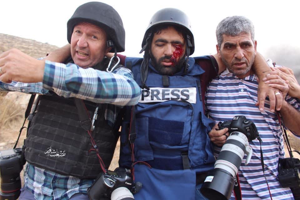 Tentara Israel Menembak Seorang Fotografer Palestina